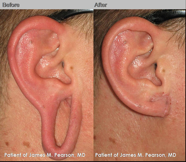 Photo Pearson Torn Earlobe Repair