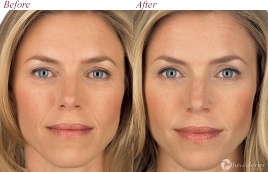Voluma Dr James Pearson Facial Plastic Surgery