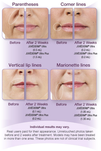 Injectable Treatments - Dr  James Pearson Facial Plastic Surgery