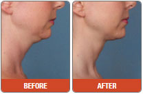 Photo Pearson Kybella before after