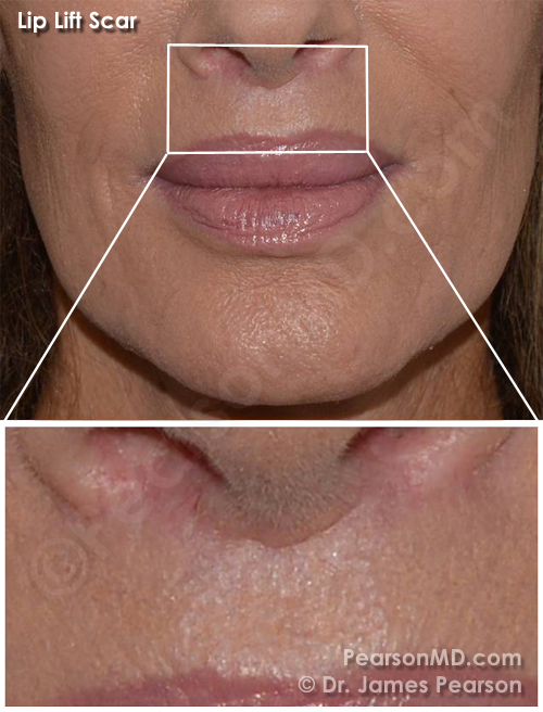 http://pearsonmd.com/photo Lip Lift Scar