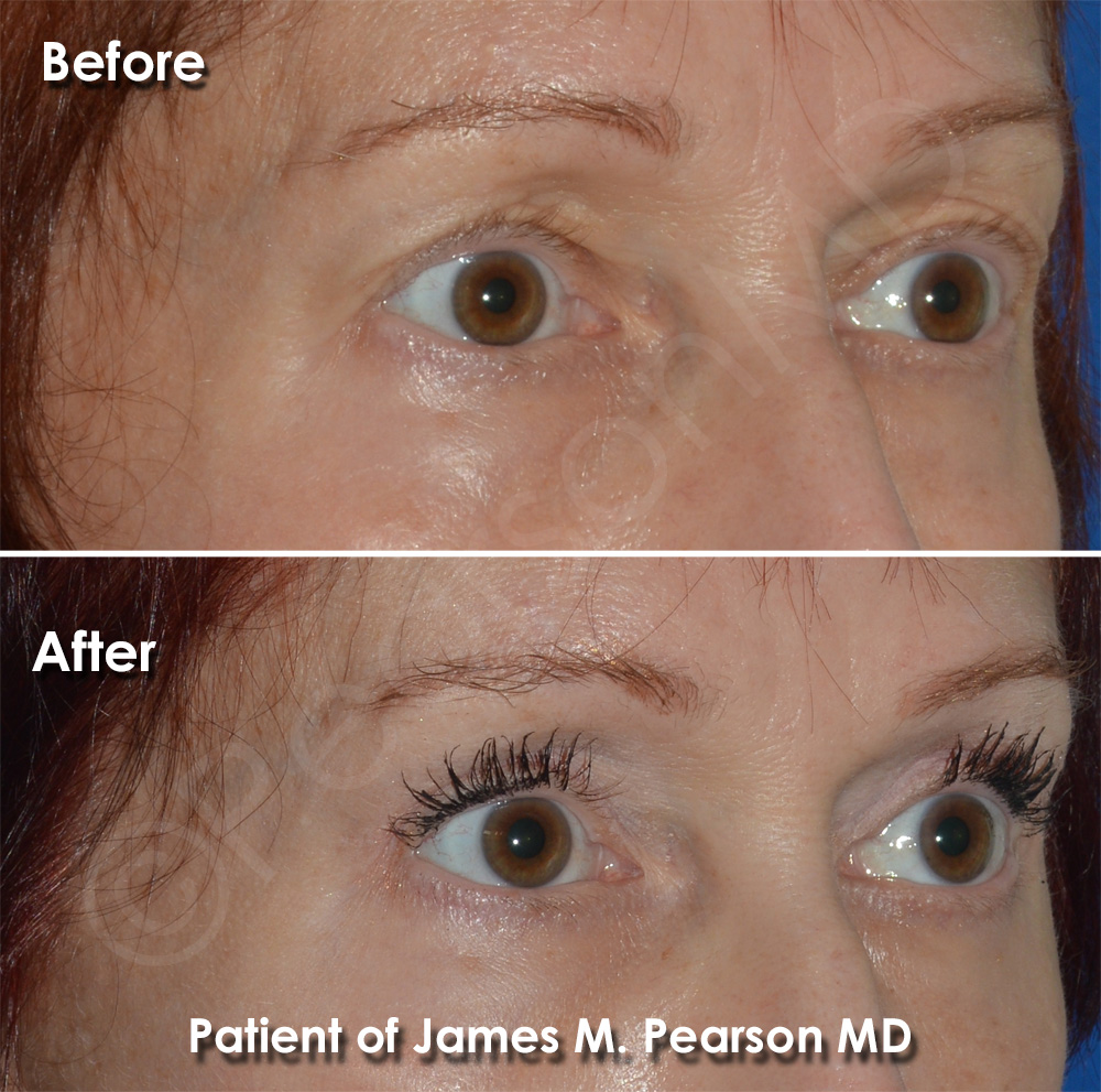 Dr. Pearson Eyelid Surgery Photo