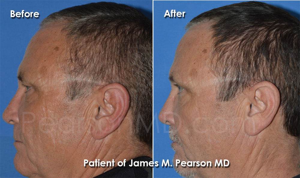 Pearson Cosmetic Surgery Browlift Photo