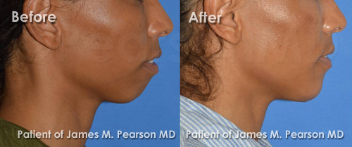 Photo Pearson Chin Implant Before and After