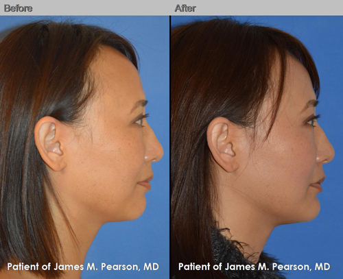 Dr. Pearson Chin Implant Photo