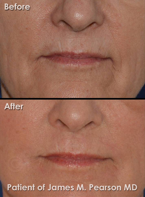 Dermabrasion Before & After Photos - Dr  James Pearson