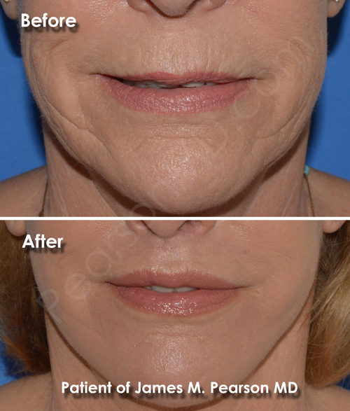 Lip Lift Photos