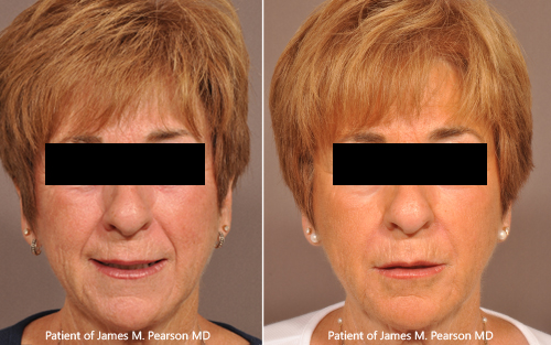 Photo Dr. Pearson cosmetic treatment