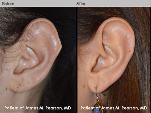 Photos Dr. Pearson Ear Plastic Surgery