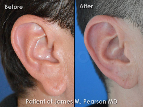 Photos Pearson Earlobe Reduction