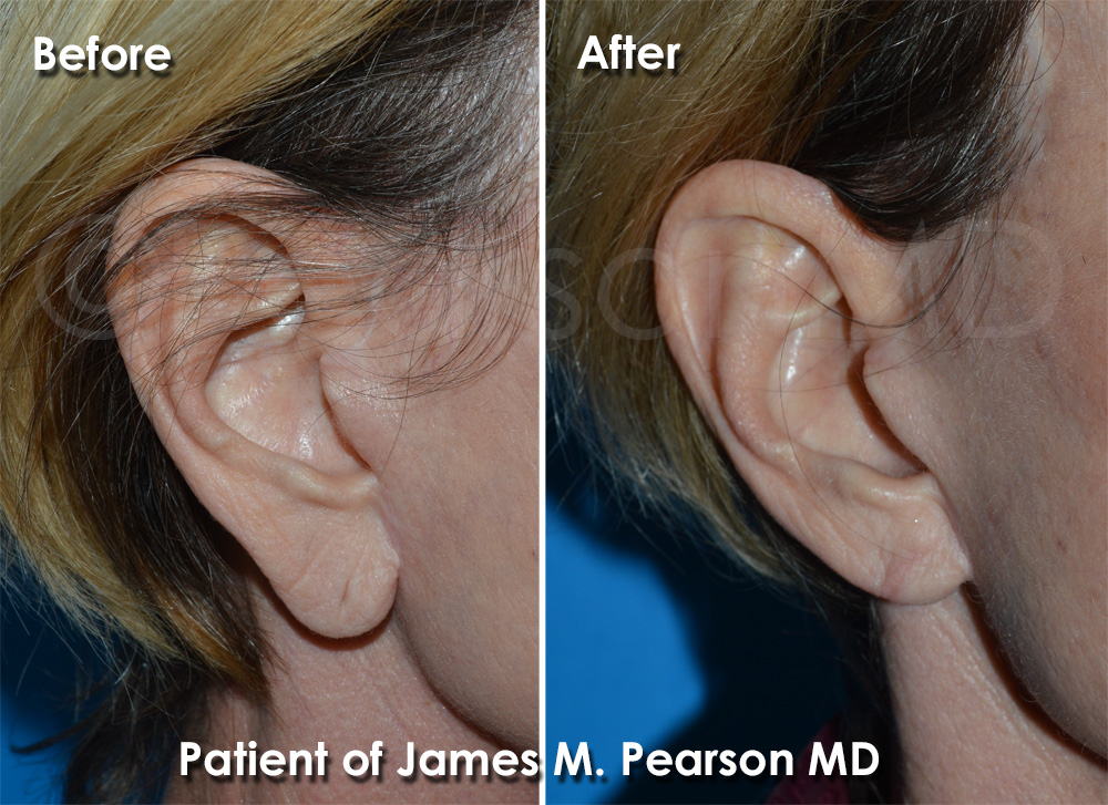 Earlobe Reduction Surgery