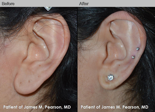Photos Before Amp After Earlobe Plastic Surgery Dr James