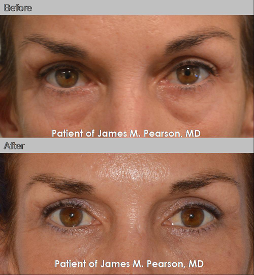 Photo - Dr. Pearson Non surgical Treatment