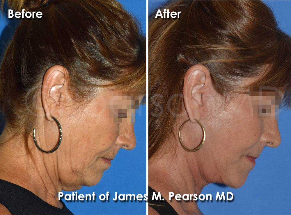 Dr. Pearson Facelift