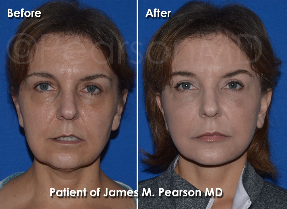 Manhattan Beach Facelift