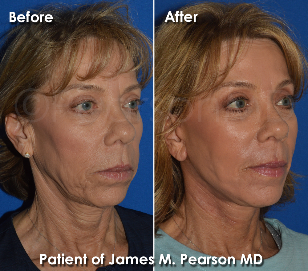 Before & After Photos, Photo Gallery - Dr  James Pearson