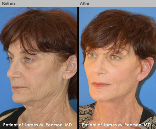 Dr. Pearson Facelift Before and After