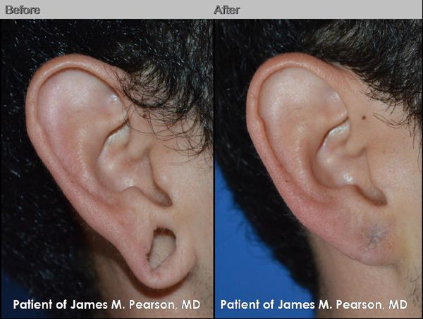 Photo Pearson Reconstructive Surgery
