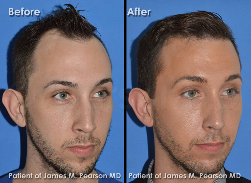 Photo Pearson Hair Restoration