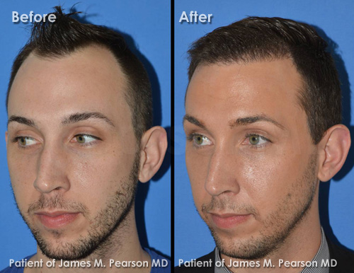 Photo Hair Restoration - Dr. James Pearson Facial Plastic Surgery