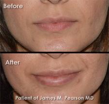 Lip Implant - Dr  James Pearson Facial Plastic Surgery