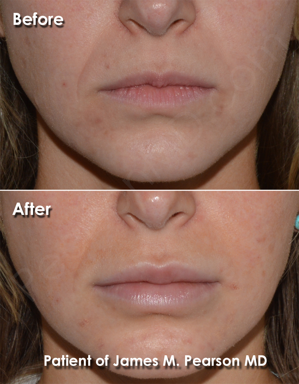 Lip Implant - Dr  James Pearson Facial Plastic Surgery