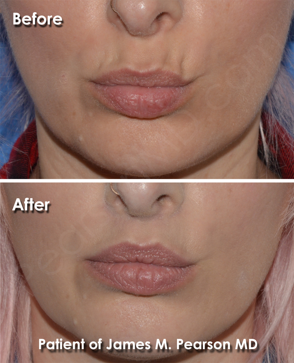 Beverly Hills Lip Lift