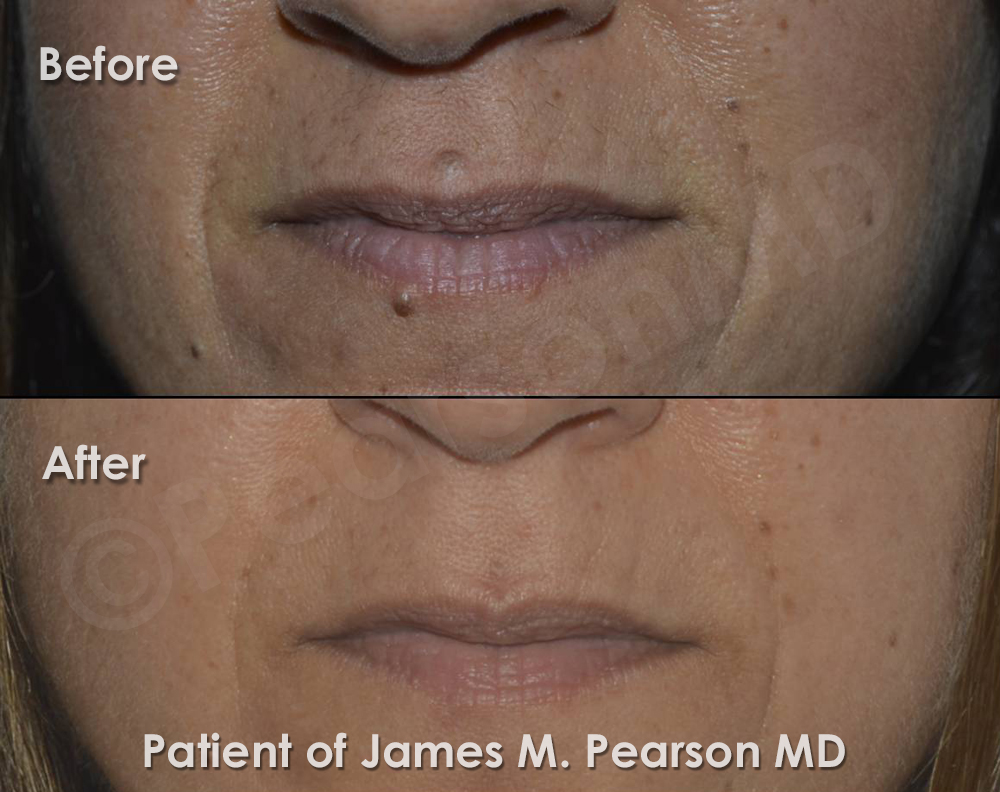 Photo Los Angeles Beverly Hills Mole Removal