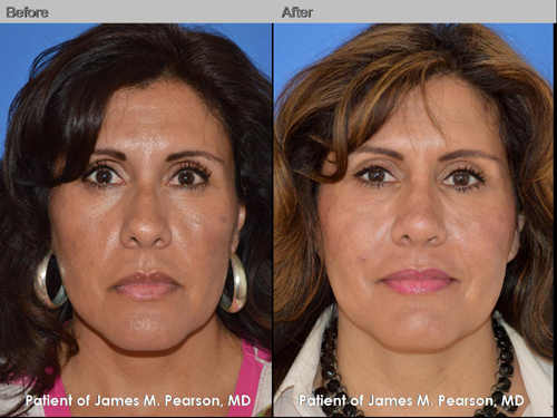Photo Pearson Rhinoplasty Nose Reshaping Surgery