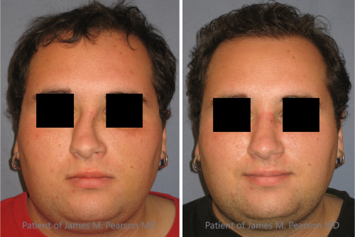 rhinoplasty surgery image