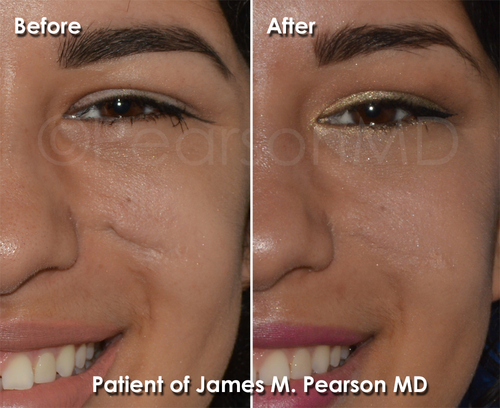 Plastic surgery facial scars talk
